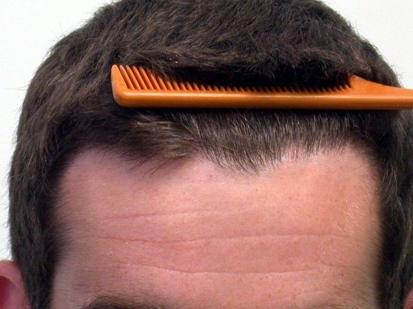 Hair Transplant After Care V Plant Advanced Hair Care Clinics